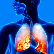 የሳንባ ምች - Pneumonia