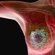 የጡት ካንሰር ተጋላጭነትን ለመቀነስ - How Reduce The Risk of Breast Cancer