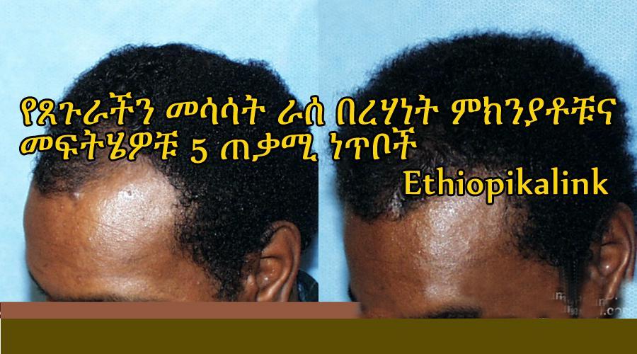 የጸጉራችን መሳሳት (ራሰ በረሃነት) ምክንያቶቹና መፍትሄዎቹ 5 ጠቃሚ ነጥቦች Ethiopikalink