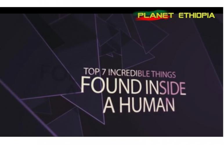 Top 7 Incredible Things Found Inside A Human - በሰዎች ሰውነት ውስጥ የተገኙ 7 አስገራሚ ነገሮች